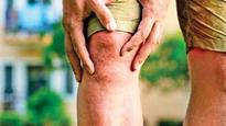 Central government slashes knee implant prices by up to 69%