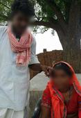 Her Husband And In-Laws Gangraped Her. Then She Was Tattooed With Abuses Because Her Family Couldn't Pay Dowry